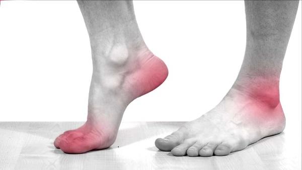 Biến chứng tiểu đường ở chân