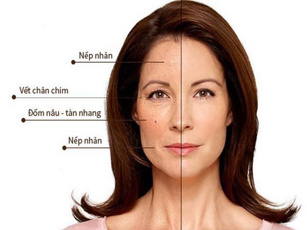 Dấu hiệu thiếu hụt collagen