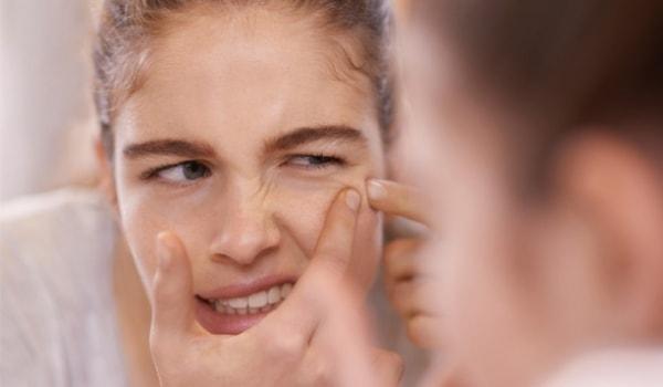 Nguyên nhân uống collagen bị nổi mụn