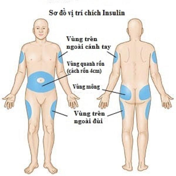 Vị trí tiêm Insulin