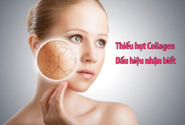Dấu hiệu cơ thể bạn đang thiếu hụt collagen