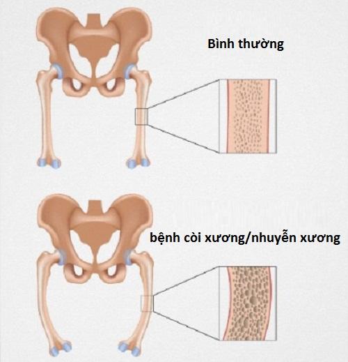 Vai trò của canxi đối với cơ thể con người