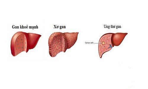 Men gan tăng cao tiềm ẩn nguy cơ bị ung thư gan? Bạn có biết?