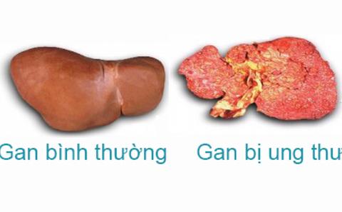 5 dấu hiệu cảnh báo viêm gan B biến thành ung thư gan