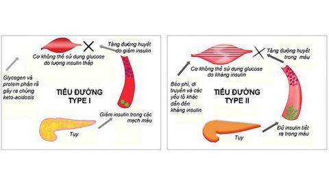 Giống và khác nhau giữa tiểu đường type 1 và 2