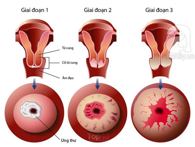 Biện pháp phòng ngừa 8 loại ung thư hàng đầu gây tử vong