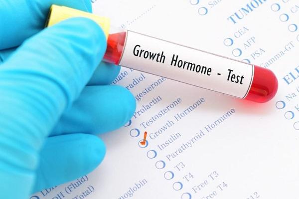 Xét nghiệm hormone tăng trưởng GH là gì?