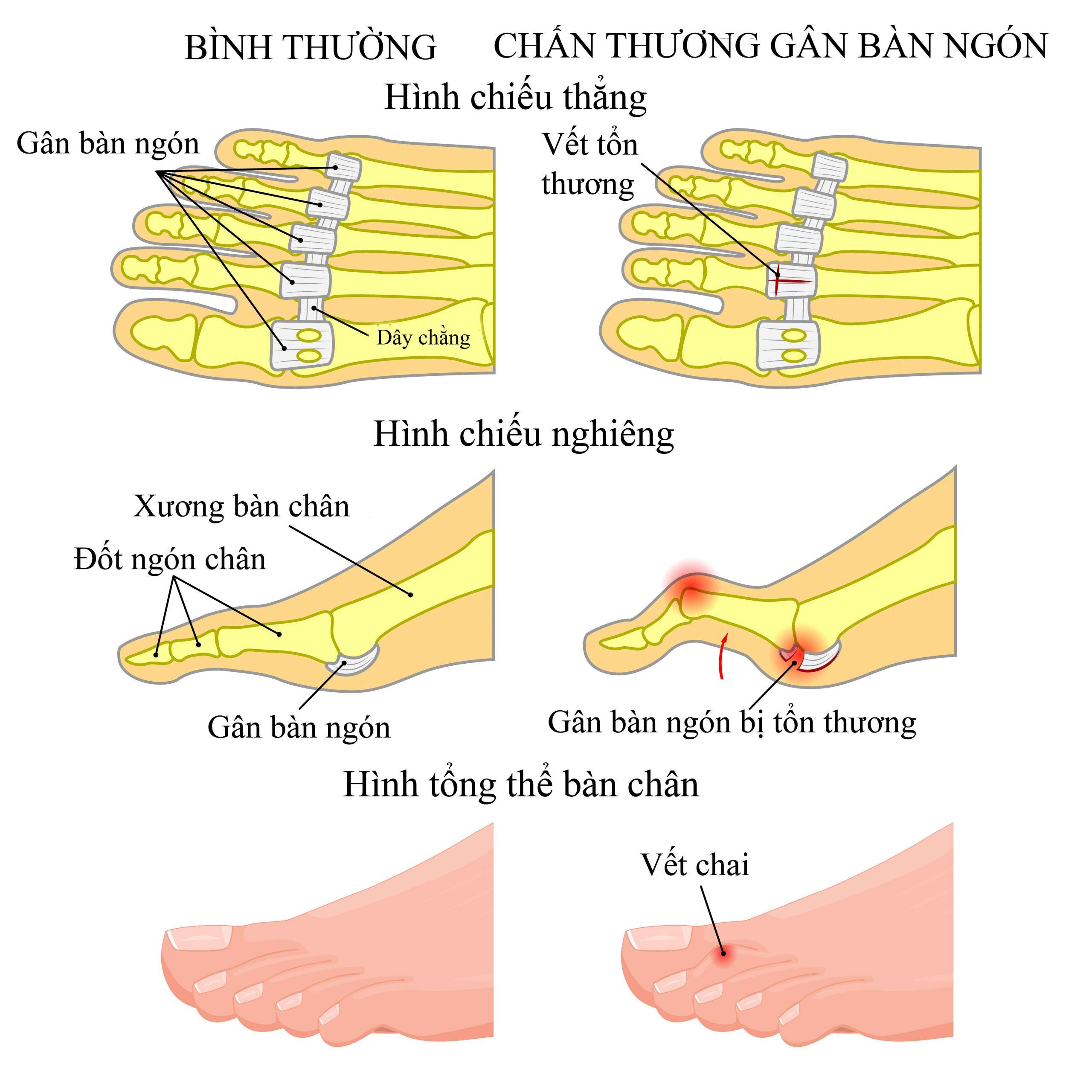 Triệu chứng thường gặp trên chân người đái tháo đường