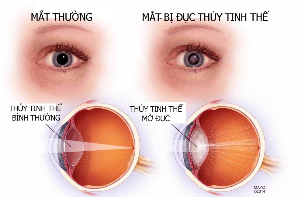 Đục thủy tinh thể (cataracts)