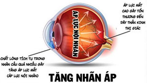 Tăng nhãn áp (glaucoma)