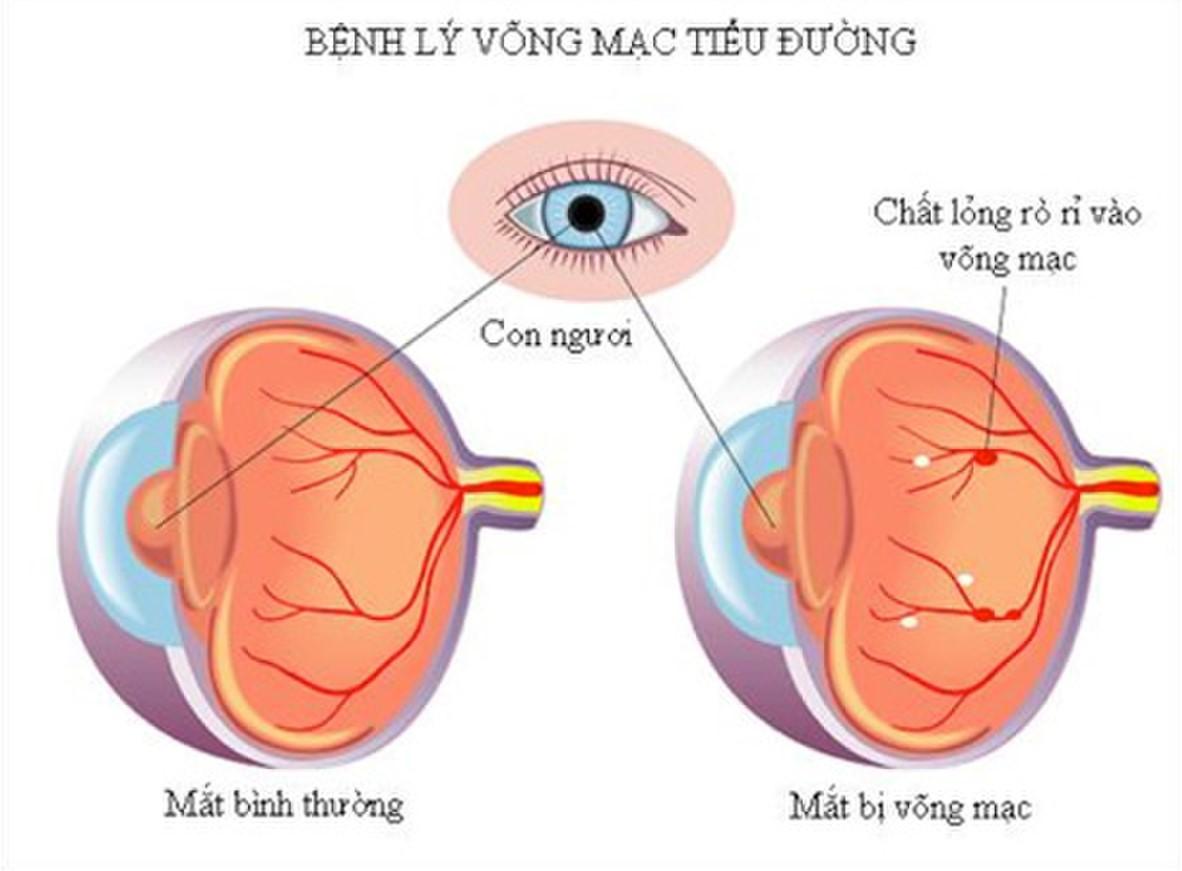 Bệnh võng mạc (diabetic retinopathy)